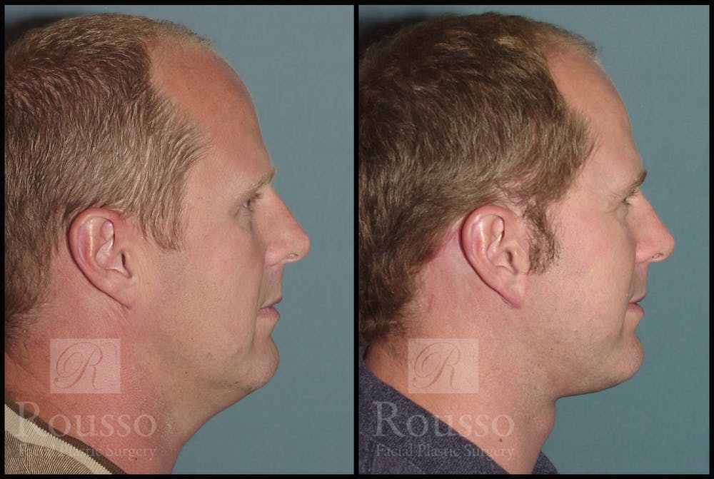 Male Facelift Gallery - Patient 2236799 - Image 3