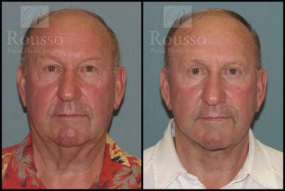 Male Facelift Gallery - Patient 2236800 - Image 1