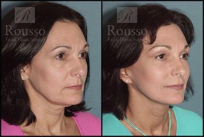 Facelift Gallery - Patient 1993300 - Image 2
