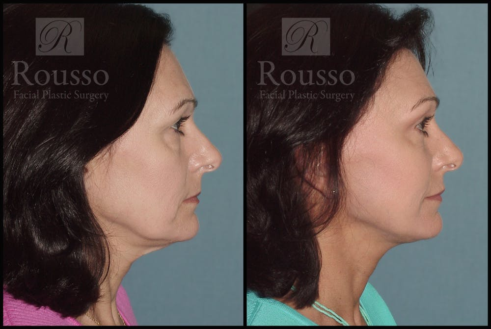 Facelift Gallery - Patient 1993300 - Image 1