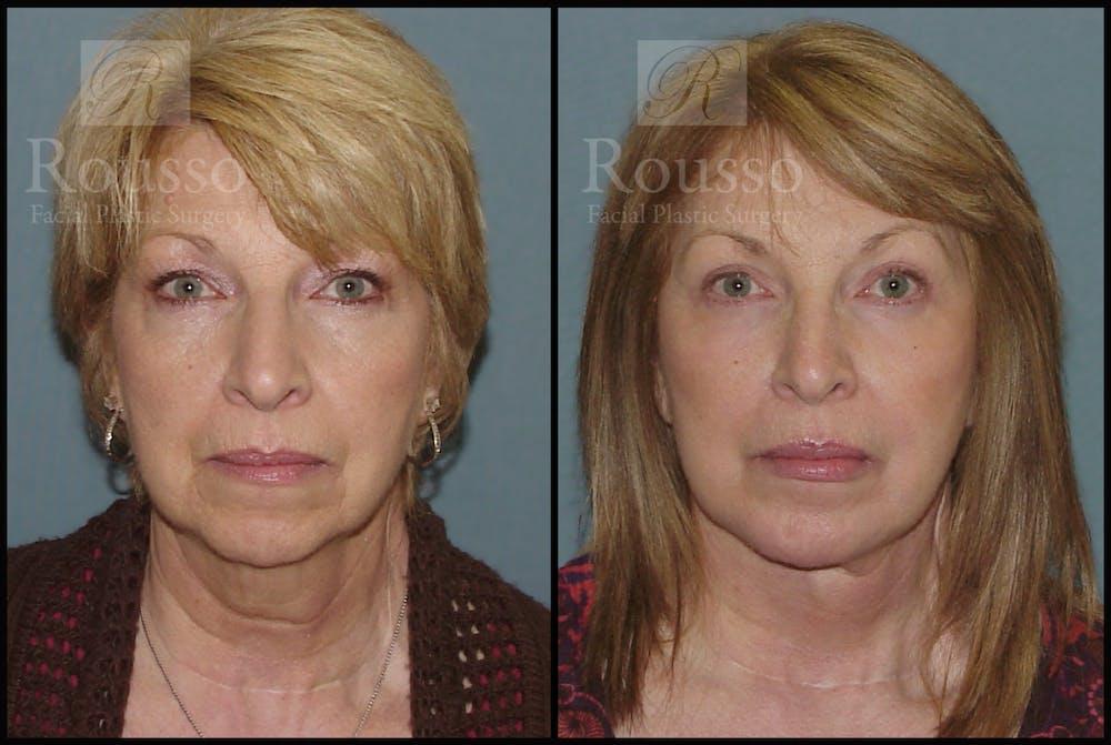 Facelift Gallery - Patient 2236803 - Image 3