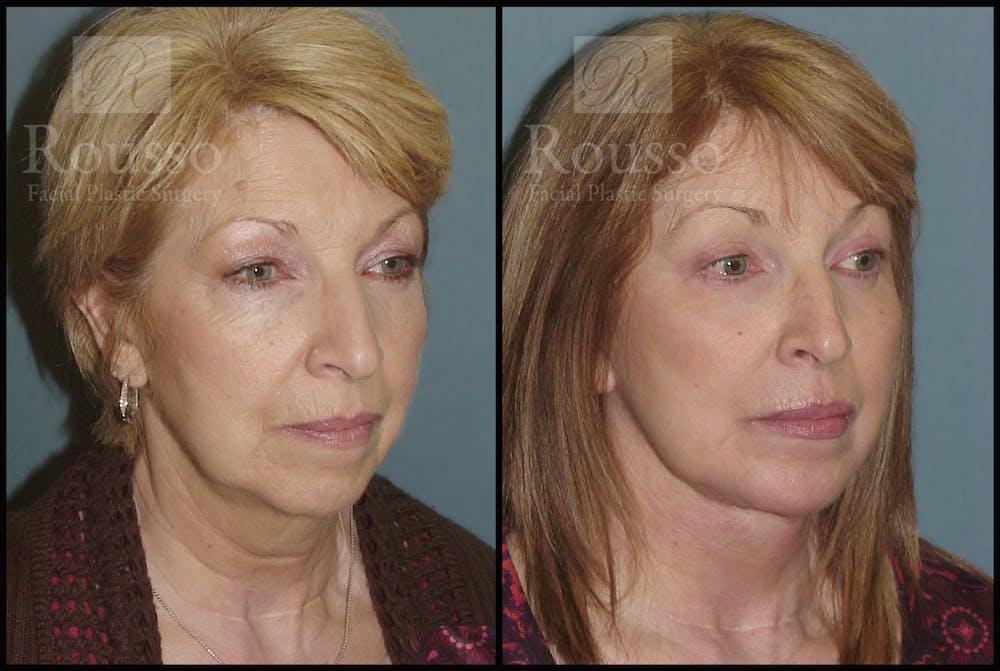 Facelift Gallery - Patient 2236803 - Image 2