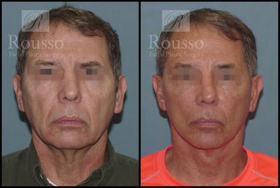 Male Facelift Gallery - Patient 2237411 - Image 1