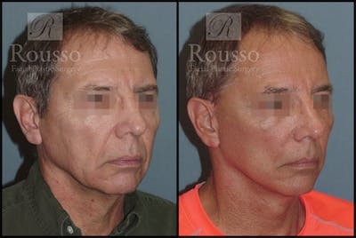 Male Facelift Gallery - Patient 2237411 - Image 2