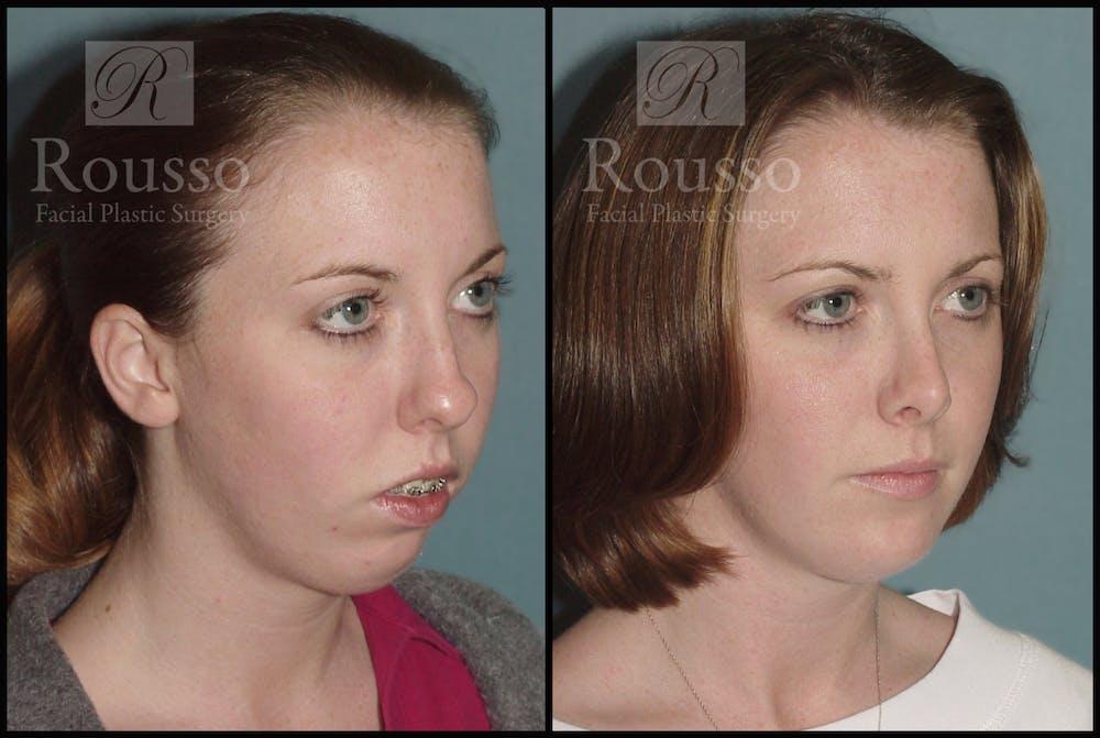 Rhinoplasty Gallery - Patient 1993299 - Image 1