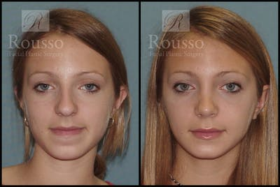Rhinoplasty Gallery - Patient 2237784 - Image 1