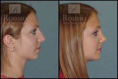 Rhinoplasty Gallery - Patient 2237784 - Image 2