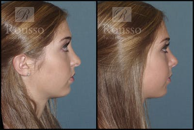 Rhinoplasty Gallery - Patient 1993311 - Image 1