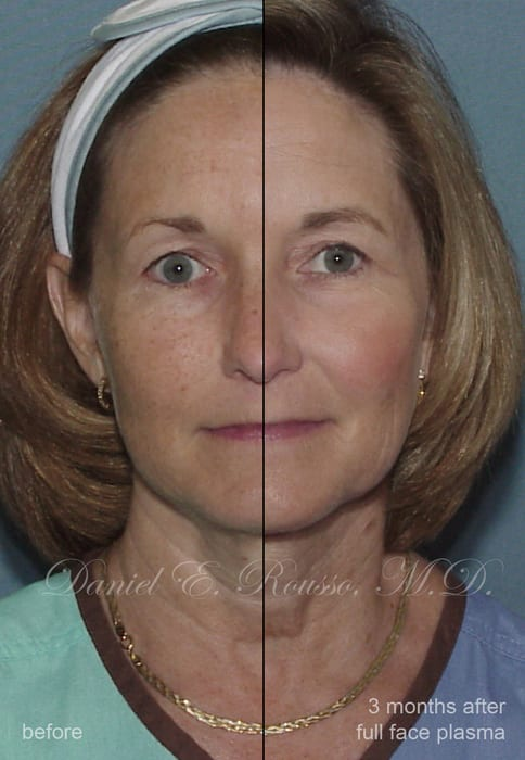 Before and after photo of an actual plasma skin resurfacing patient
