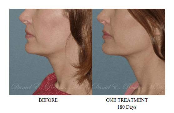 Ultherapy Non Invasive Technology to Subtly Tighten Skin