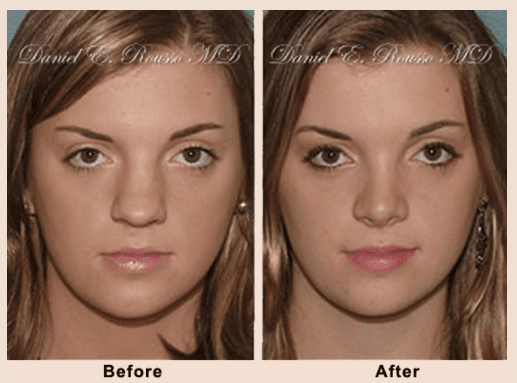Cosmetic Rhinoplasty A Nose Job Dr Rousso