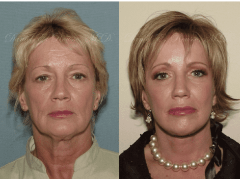 Before and After Traditional Facelift