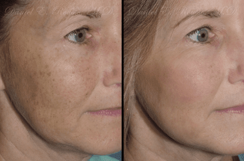 Plasma Skin Resurfacing Before and After Photos