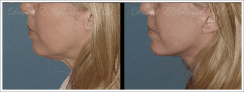 Rousso - Chin implant before and after photos