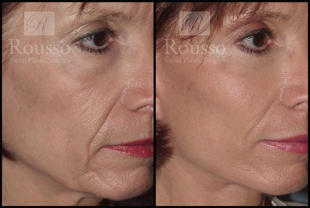 SculptLift™ Gallery - Patient 2279582 - Image 3