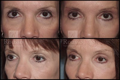 Blepharoplasty Gallery - Patient 2279583 - Image 1