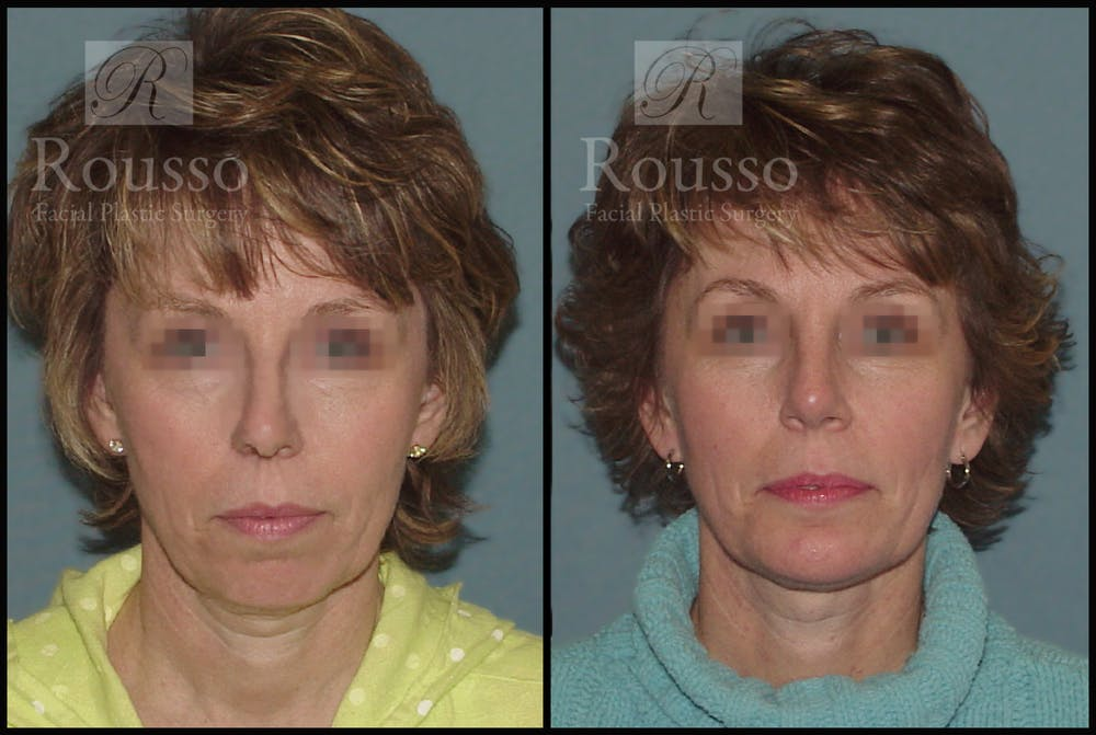 Implants Gallery - Patient 2514984 - Image 3