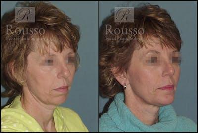 Implants Gallery - Patient 2514984 - Image 1