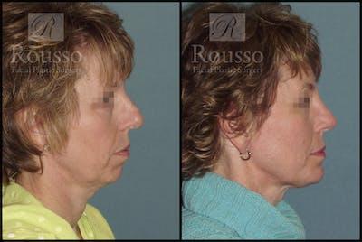 Implants Gallery - Patient 2514984 - Image 2