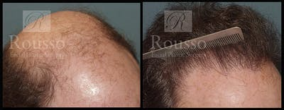 Hair Gallery - Patient 2574218 - Image 4