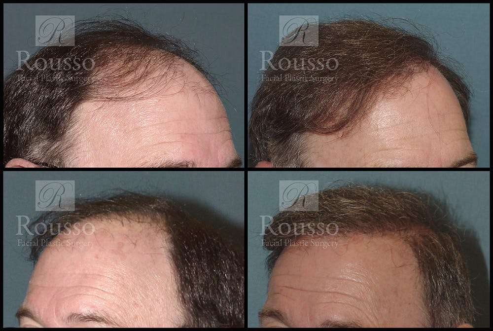 Hair Transplant Gallery - Patient 2601731 - Image 1