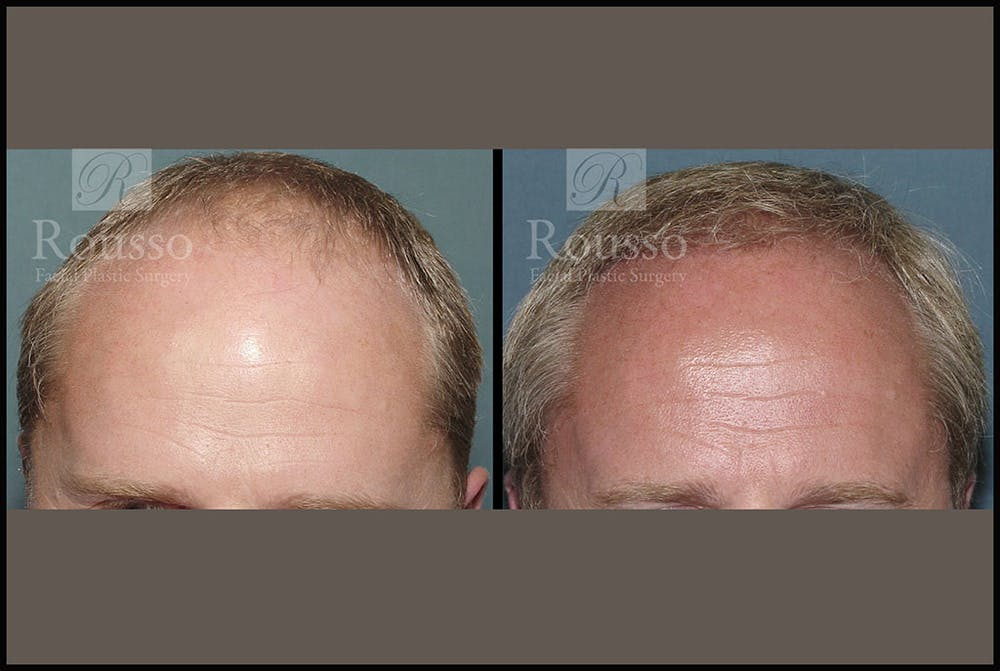 Hair Gallery - Patient 2689693 - Image 1