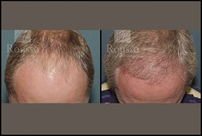 Hair Gallery - Patient 2689693 - Image 2