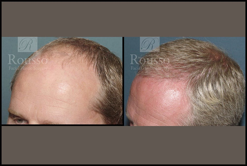 Hair Gallery - Patient 2689693 - Image 3
