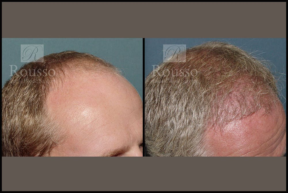 Hair Gallery - Patient 2689693 - Image 4