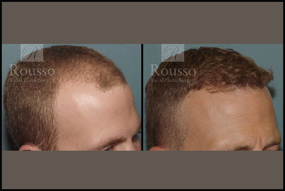 Hair Gallery - Patient 2689696 - Image 1