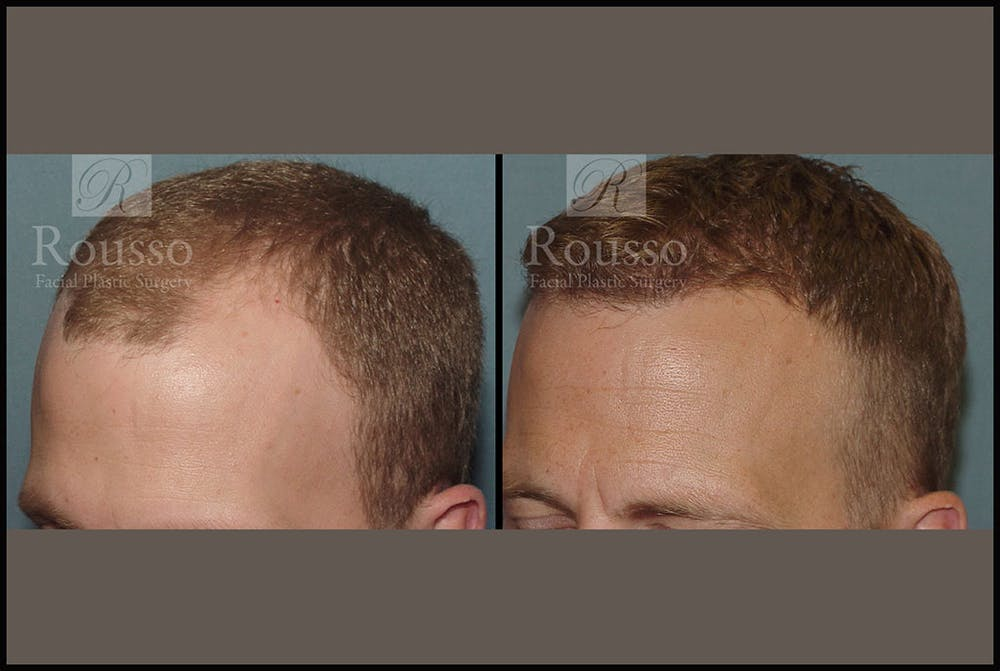 Hair Gallery - Patient 2689696 - Image 2