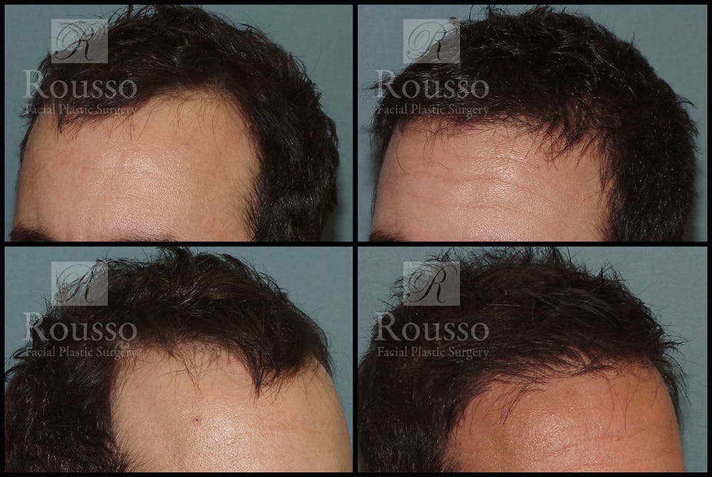 Hair Transplant Gallery - Patient 2715747 - Image 1
