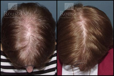 Hair Gallery - Patient 2715748 - Image 1
