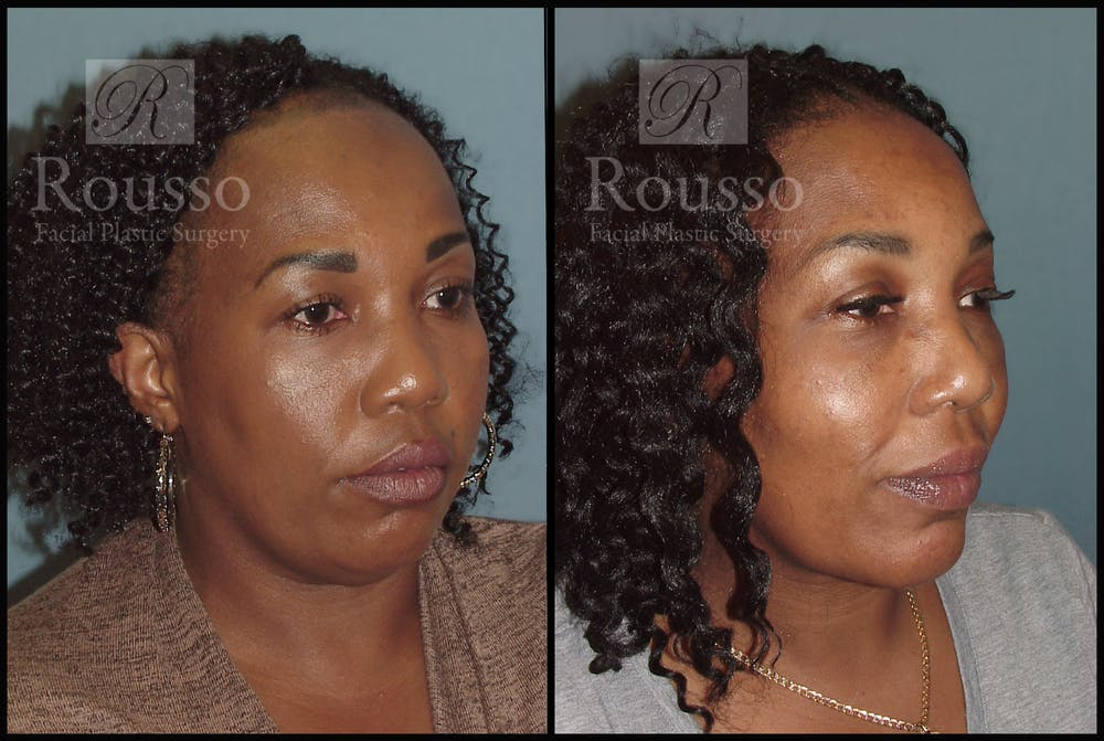 Hair Gallery - Patient 3201070 - Image 1