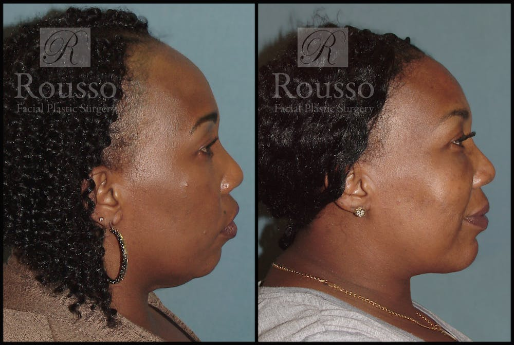 Hair Gallery - Patient 3201070 - Image 2