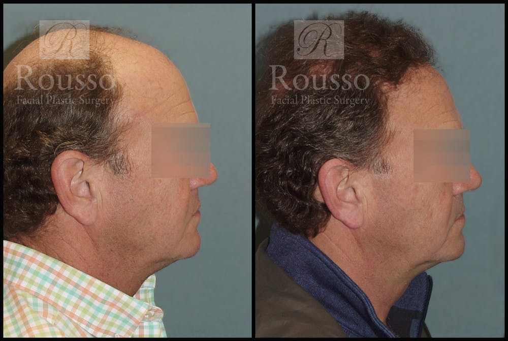 Hair Gallery - Patient 2574218 - Image 3