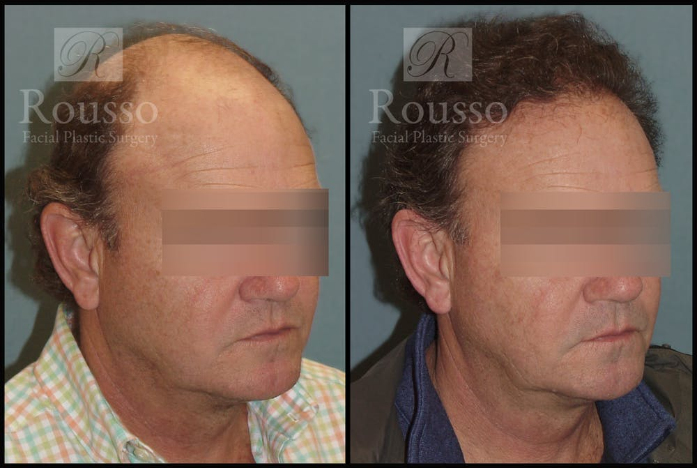 Hair Gallery - Patient 2574218 - Image 2