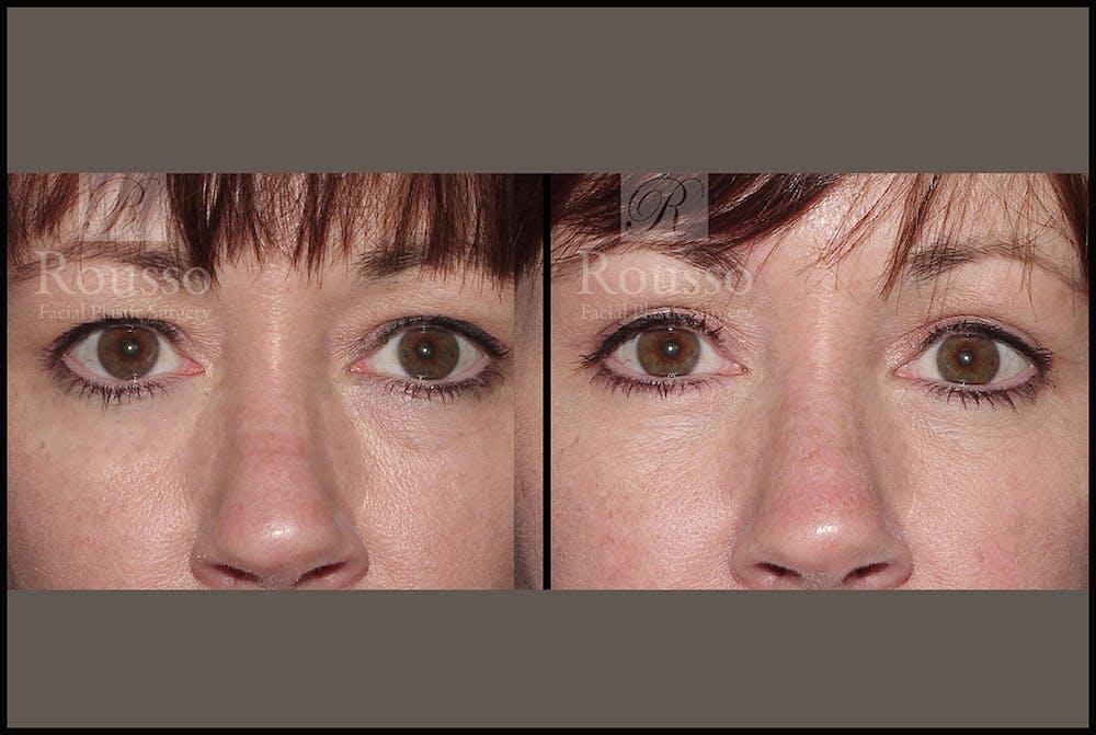 Blepharoplasty Gallery - Patient 2205363 - Image 1