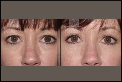 Blepharoplasty Gallery - Patient 2205363 - Image 1