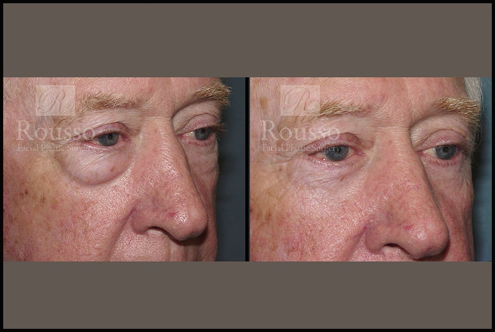Blepharoplasty Gallery - Patient 2029499 - Image 3