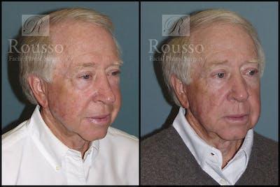 Blepharoplasty Gallery - Patient 2029499 - Image 4