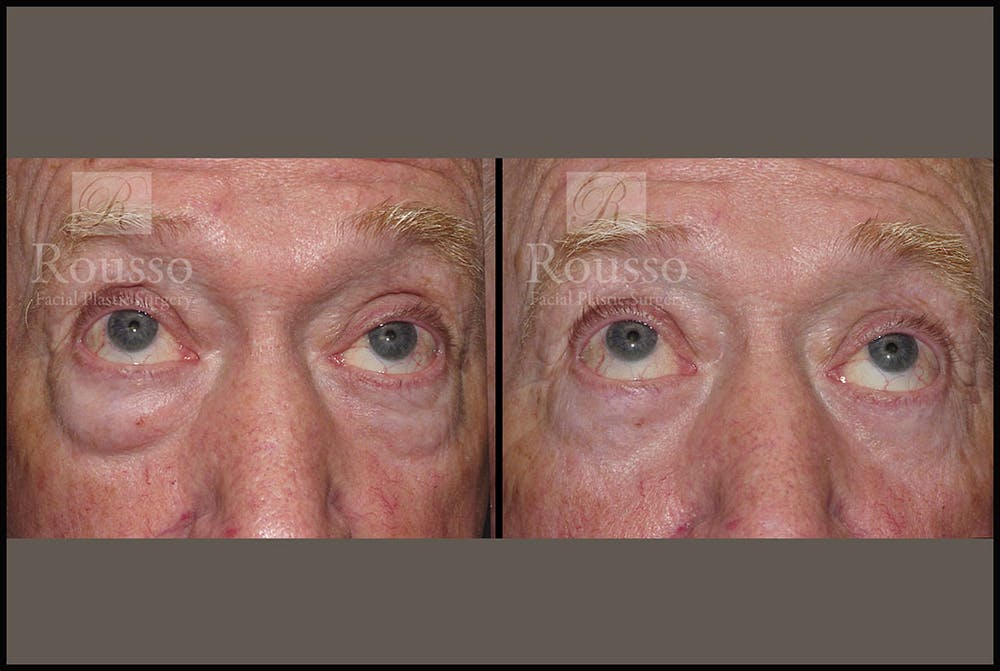 Blepharoplasty Gallery - Patient 2029499 - Image 2