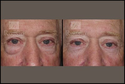 Blepharoplasty Gallery - Patient 2029499 - Image 1