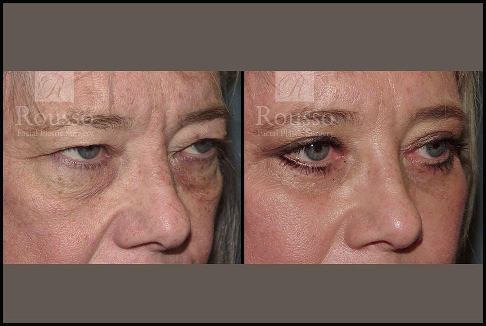 Blepharoplasty Gallery - Patient 3256890 - Image 1