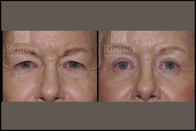 Blepharoplasty Gallery - Patient 3256891 - Image 1