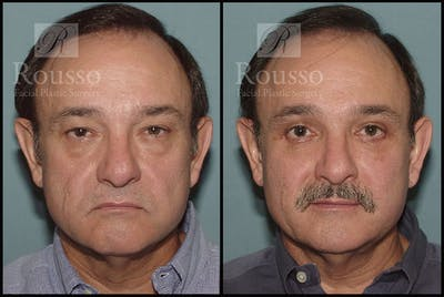 Blepharoplasty Gallery - Patient 3256892 - Image 1