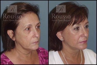 Facelift Gallery - Patient 3261699 - Image 2