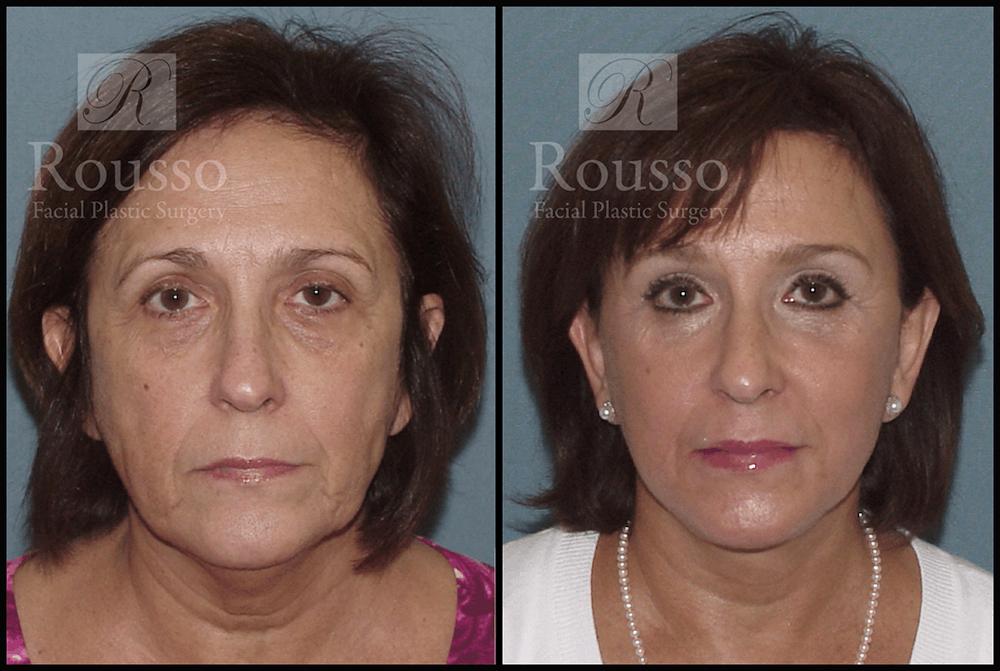 Facelift Gallery - Patient 3261699 - Image 3