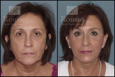 Facelift Gallery - Patient 3261699 - Image 1