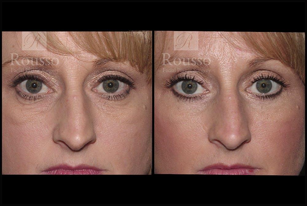 Blepharoplasty Gallery - Patient 3262170 - Image 1